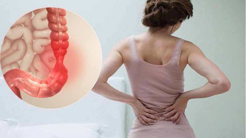 Đau lưng – Triệu chứng hội chứng ruột kích thích không phải ai cũng biết
